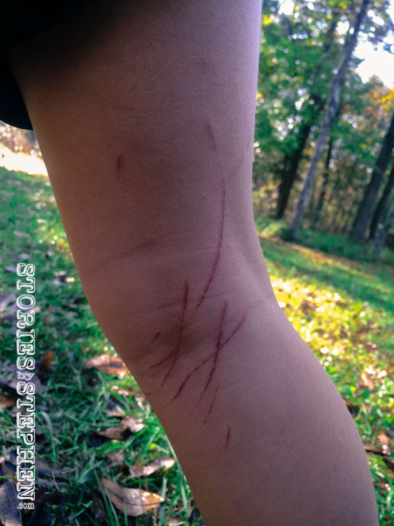 We all got pretty scraped up on the 1st day while hiking and searching for firewood. Julie Beth's leg was no exception.